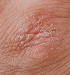 luszczycowe-zapalenie-stawow-u-doroslych