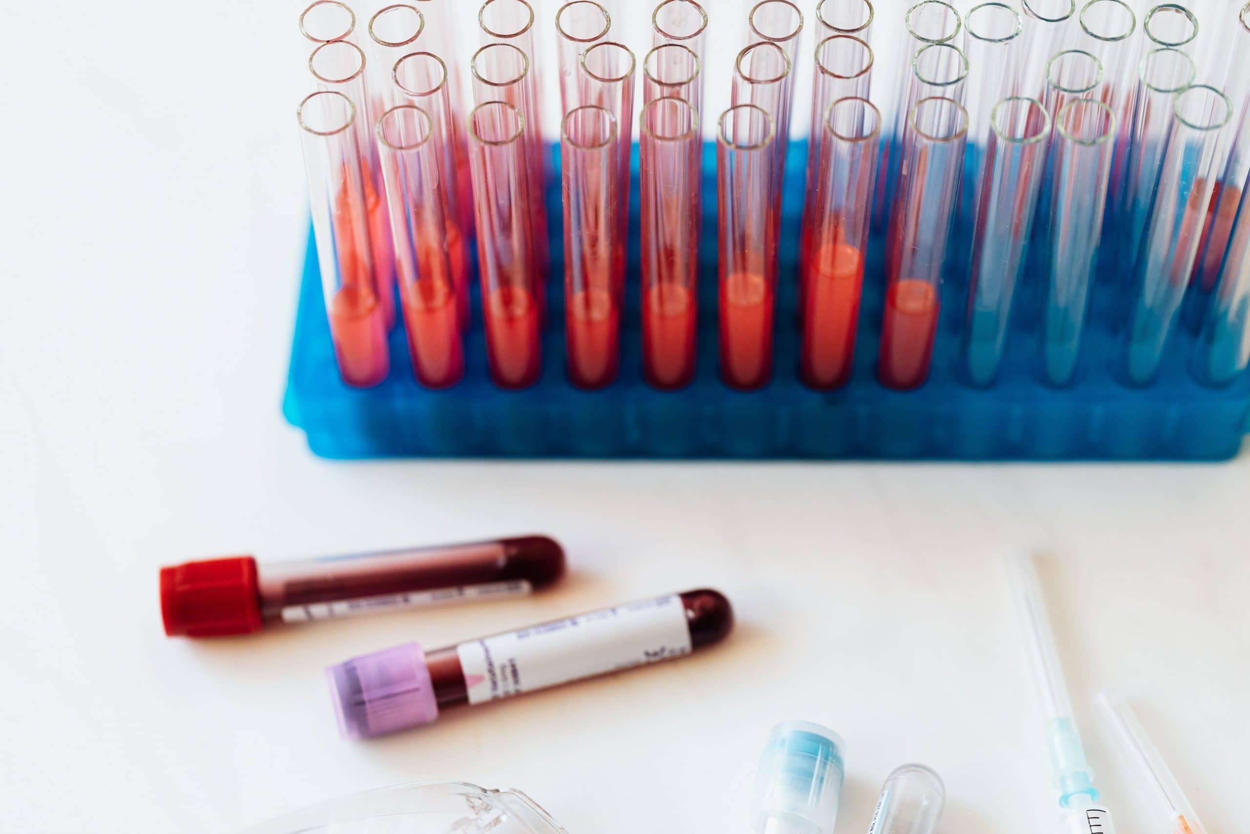 niedokrwistosc-chorob-przewleklych